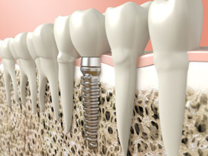 Infected Dental Implant