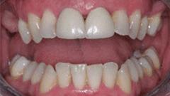 Restorative Dentistry Patient Before