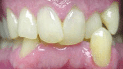 Cosmetic Patient Before
