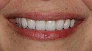 Restorative Dentistry Patient After