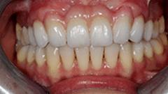 Patient 2 Smile After
