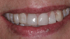 Cosmetic Patient After