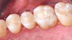 General Dentistry Patient After