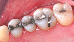 General Dentistry Patient Before