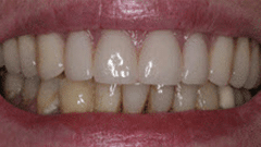 Denture Patient After