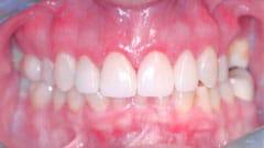 Procedure Performed: Porcelain Veneers, Anterior Crowns & Invisalign