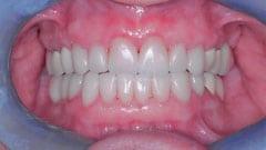 Procedure Performed: Porcelain Veneers, Crowns, Dental Implants & Clear Aligners