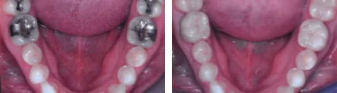 CEREC Crowns & Inlays