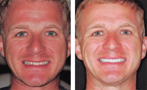 CEREC Crowns Before & After