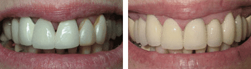 Dental Bridges Before & After