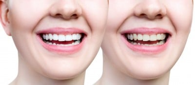 Fix chipped tooth with dental bonding