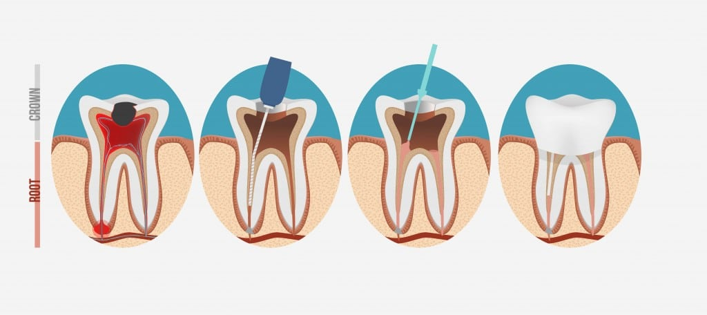 Root Canal Treatment Steps