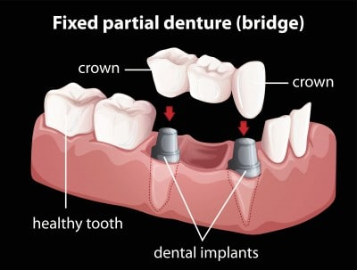 Example of dental bridge.