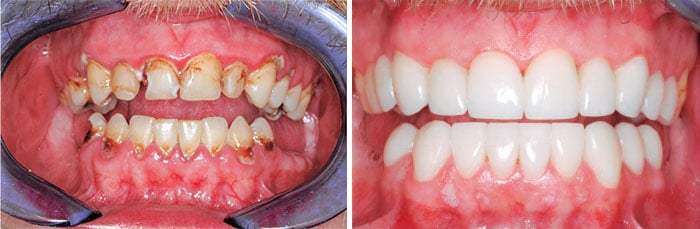 Before & After closeup of a patients teeth showing the difference restorative dentistry can make