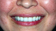 Restorative Dentistry Patient After