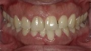 Procedure Performed: Laser Gingivectomy
