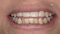 BioClear dental patient
